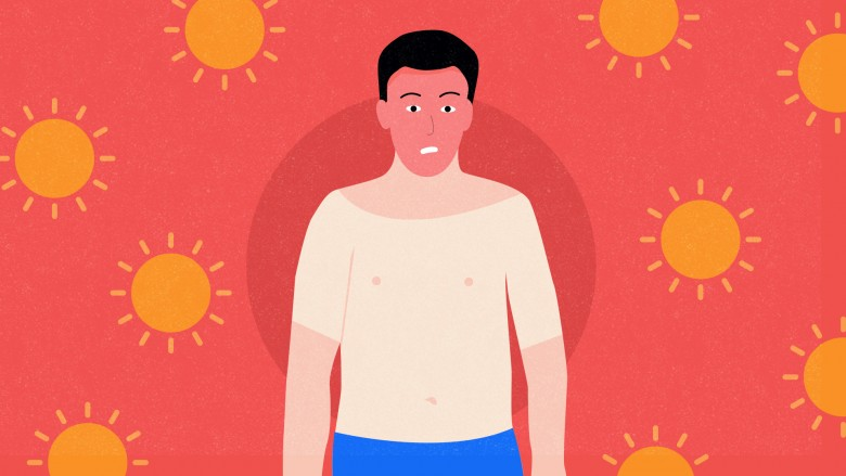 5tips-sunburn
